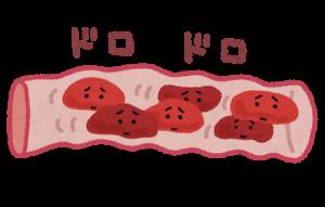 血の巡りが悪い