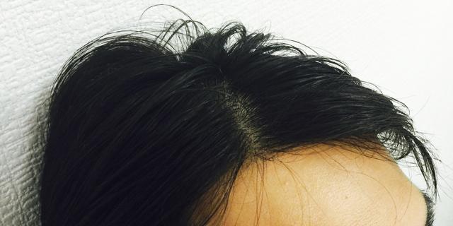 前髪の後退が気になる