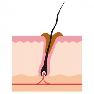 多量の皮脂は頭皮ケアを。清潔な毛穴に