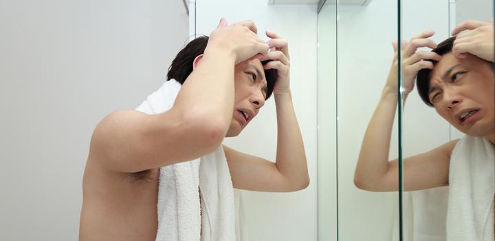 男性ホルモンばかりではないaga進行の原因