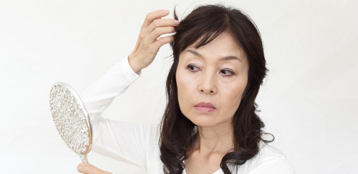 女性の薄毛症状、FAGAとは