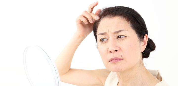更年期障害の薄毛