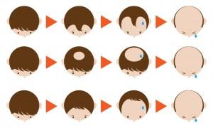 O型やM型の薄毛は男性型脱毛症